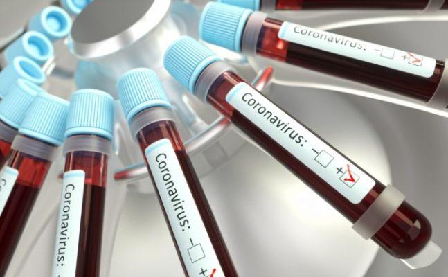 Récords en Argentina: 13.467 nuevos casos de coronavirus y 391 muertes