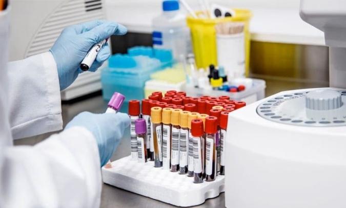Coronavirus en Argentina: se confirmaron 12.625 nuevos contagios y ya son 664.799 en total