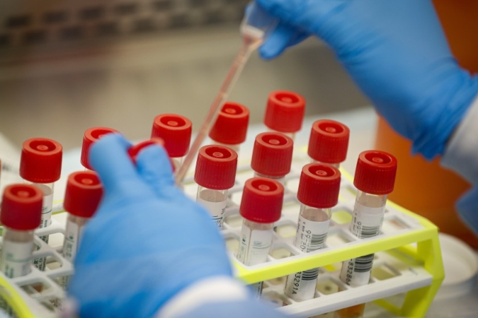 Mendoza reportó 565 nuevos casos de coronavirus y otros 6 fallecimientos