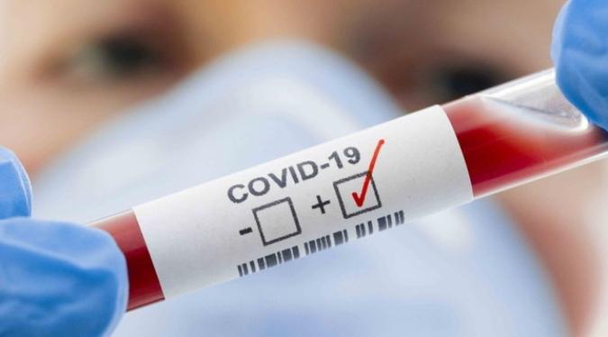 ¡A no bajar la guardia! Mendoza registró 611 nuevos contagiados y 9 muertos por Covid-19
