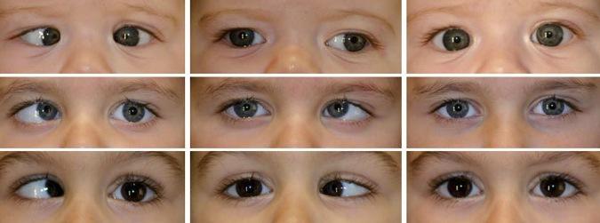 """La Ambliopía u """"ojo perezoso"""" afecta muchos niños: Clínica de la Visión te explica la importancia de consultar a tiempo"""