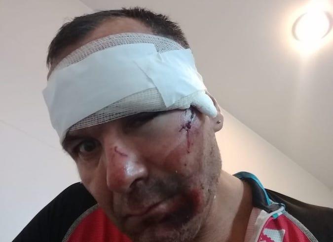 Cuando el ciclismo deja mucho que desear: poco control, agresiones, lesionados y riesgos para todos