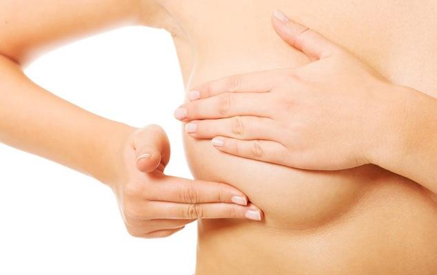 ¿Cuáles son los síntomas del cáncer de mama? ¿Cómo hacerse el autoexamen? La palabra de un especialista