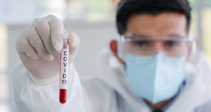 Covid en Mendoza: de 1.546 pruebas realizadas, solo 20 dieron positivo