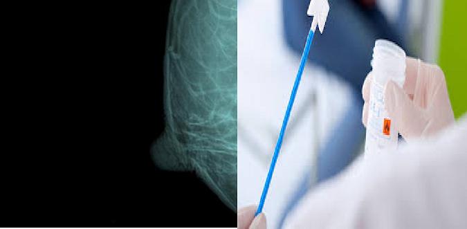 Para prevenir el cáncer de mama y de cuello uterino, el Scaravelli hará PAP y mamografías sin turnos